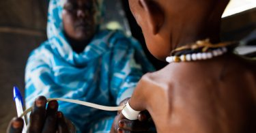 A nurse measures the arm of a severly malnourished child at a clinic run by the Kuwait Patients Helping Fund in North Darfur (Albert Gonzalez Farran/UN Photo/Flickr/CC BY-NC-ND 2.0)
